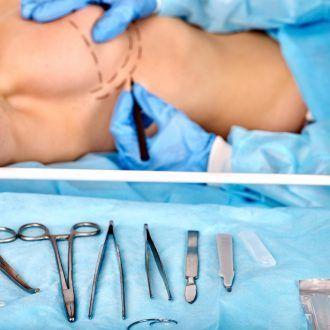 Reconstrucción mama con expansores