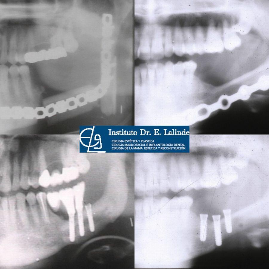 Reconstrucción de mandibula