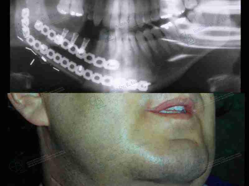 Antes y después de reconstrucción mandibular