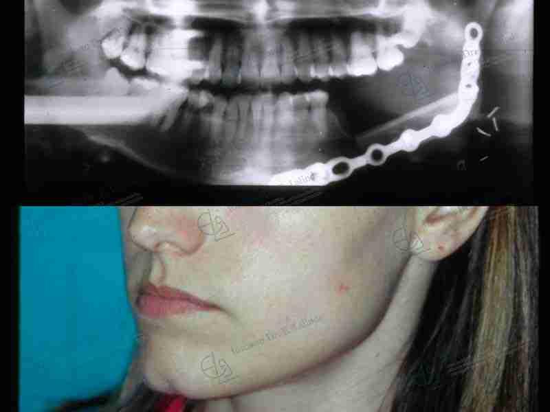 Fotos de reconstrucción mandibular