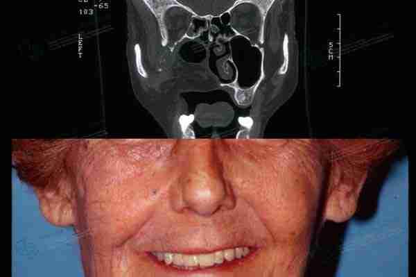 Fotos reconstrucción maxilar