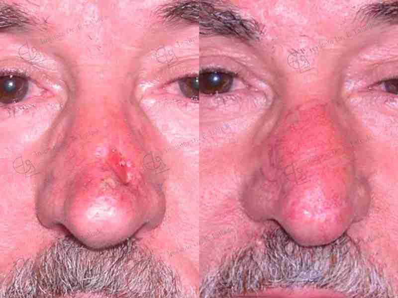 Fotos del antes y después de reconstrucción de nariz