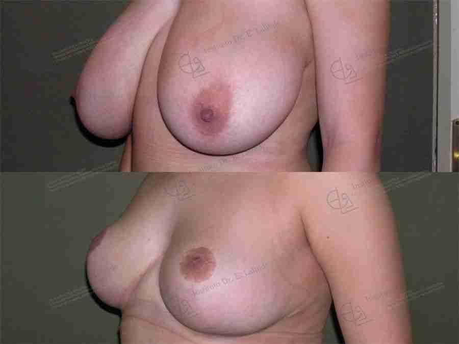 Antes y después de reducción mamaria
