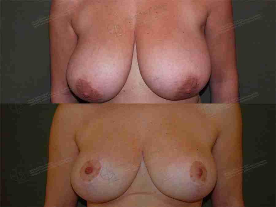 Reducción mamaria antes y después