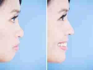 rinoplastia oriental antes y después