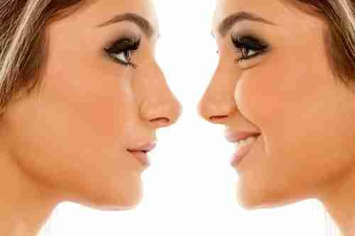 Rinoplastia y tipos de nariz