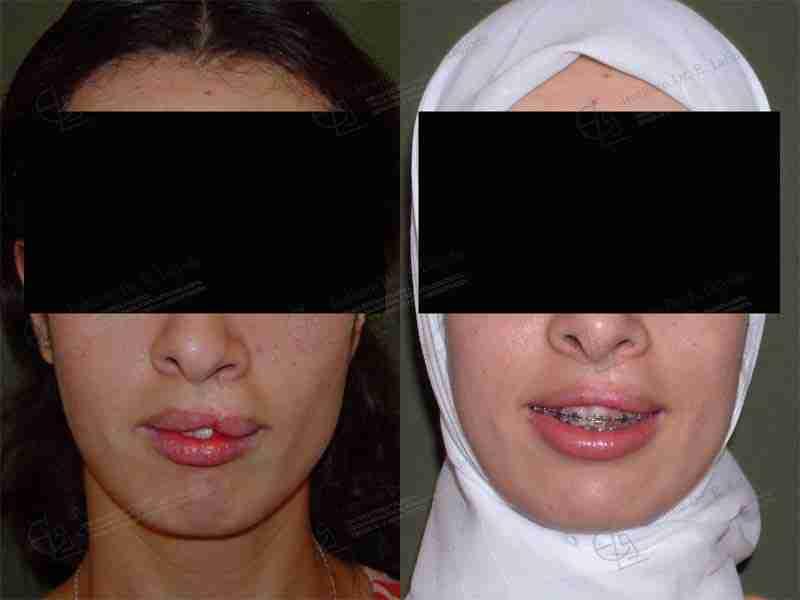 Antes y después operación labio leporino en Madrid