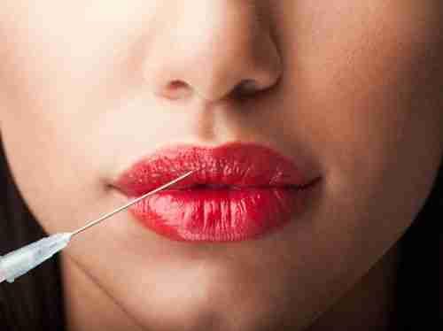 Silicona en los labios