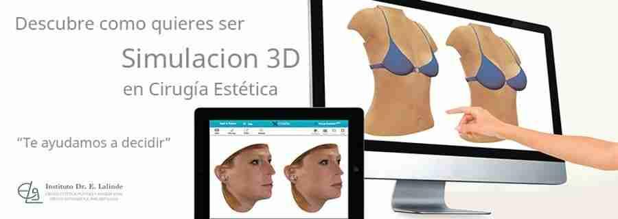 simulacion 3D en cirugia facial y aumento de mamas