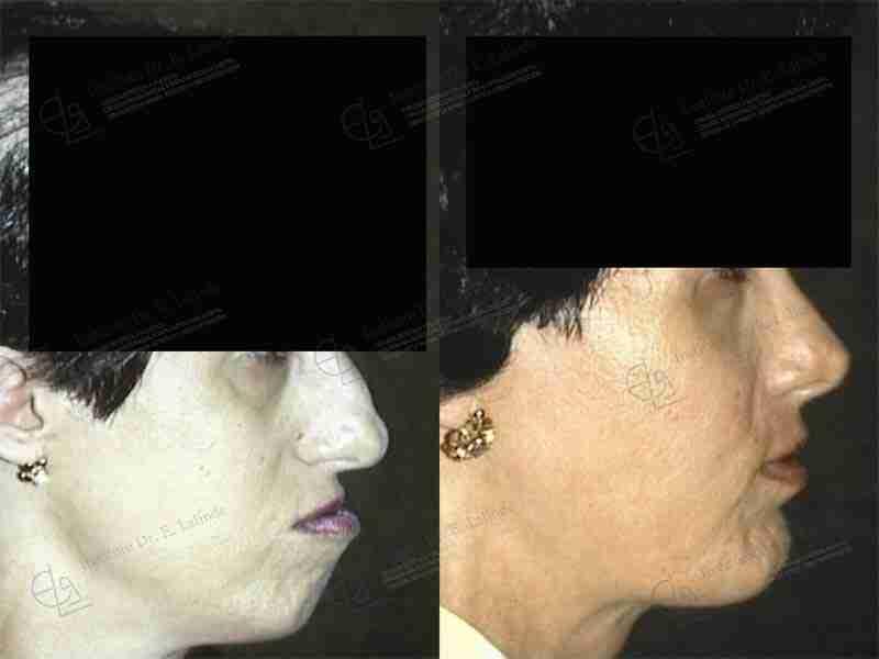 Antes y después exceso maxilar