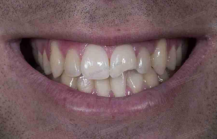 Foto traumatismo dental