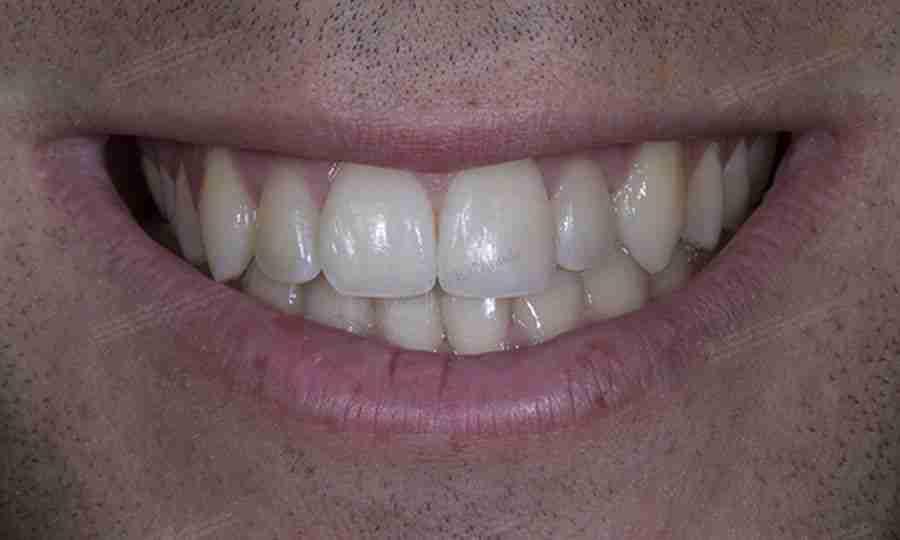 Foto del después de un traumatismo dental