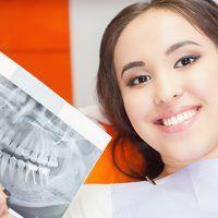 Ventajas de prótesis e implantes